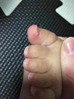 1歳7ヵ月・・・足や手の爪がボロボロなのは何故??